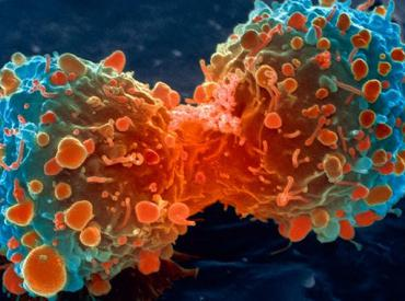 Cancer cell image from thespiritscience.net
